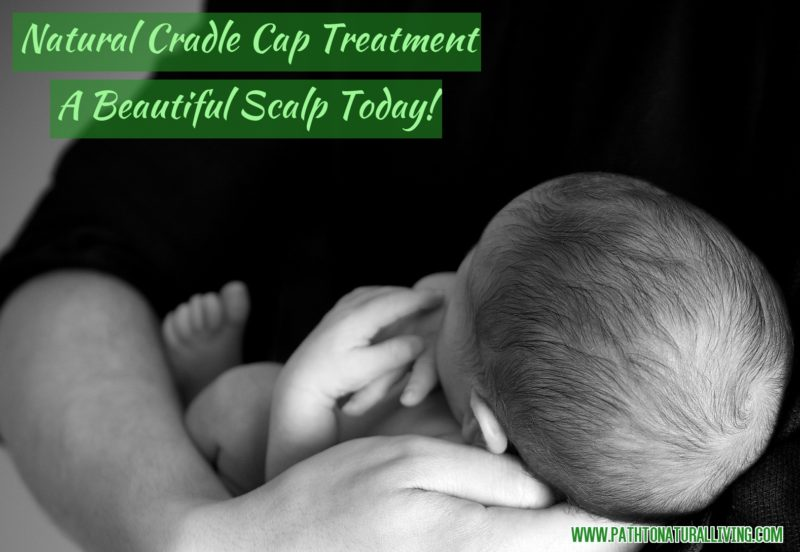 Quick & Natural Cradle Cap Treatment – Babies Hair will be Beautiful Again!