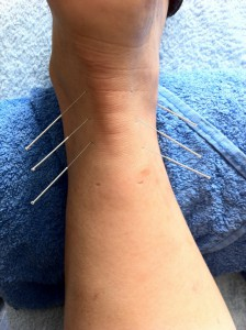 acupuncture-1211182_1920